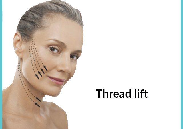 Laser Fat Removal – Thread Lift