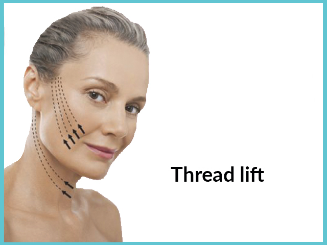 Laser Fat Removal – Thread Lift